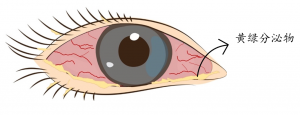 细菌性结膜炎的眼睛特征