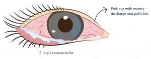 Eye with Allergic Conjunctivitis