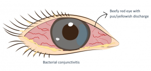Eye with bacterial conjunctivitis