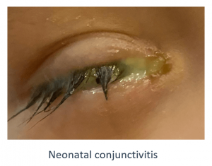 Eye with Neonatal Conjunctivitis