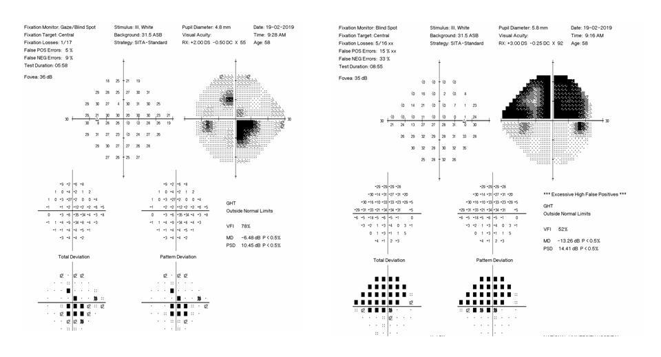 visual field test diagram
