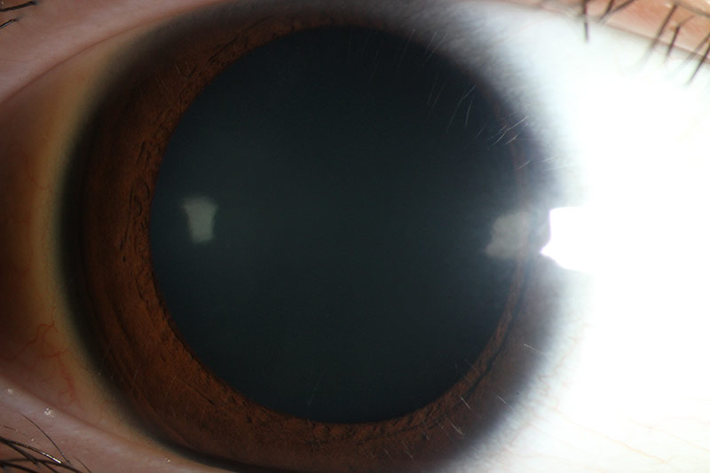 eye with a clear lens