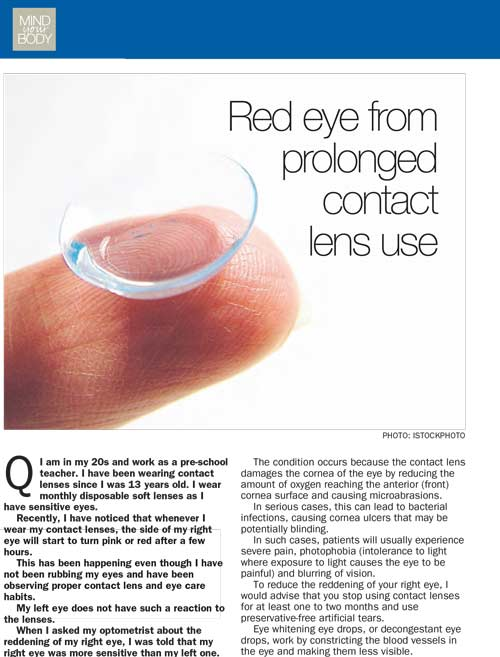 eye specialist media articles - The Straits Time April 2013
