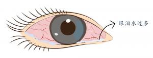 病毒性结膜炎的眼睛特征