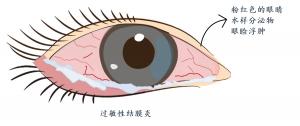 过敏性结膜炎