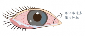 过敏性结膜炎的眼睛特征