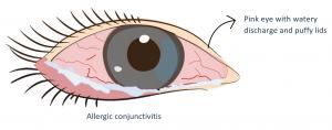 Eye with Allergic Conjunctivitis