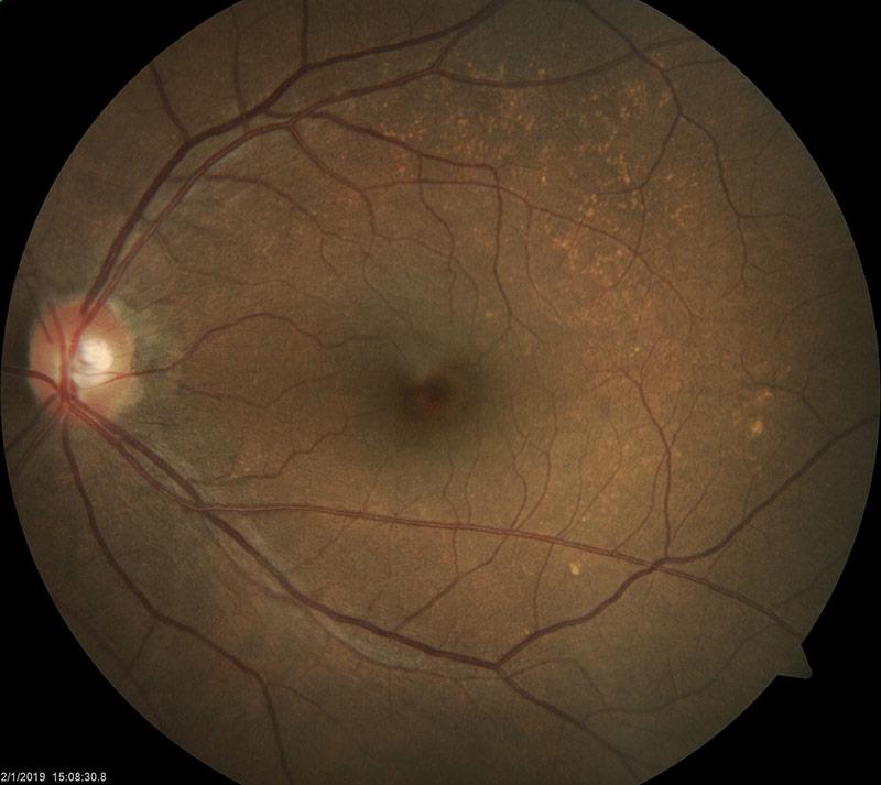 Dry AMD in left eye