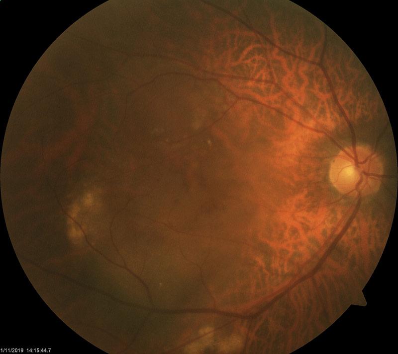 Wet AMD in right eye