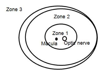 zones of retinopathy of prematurity