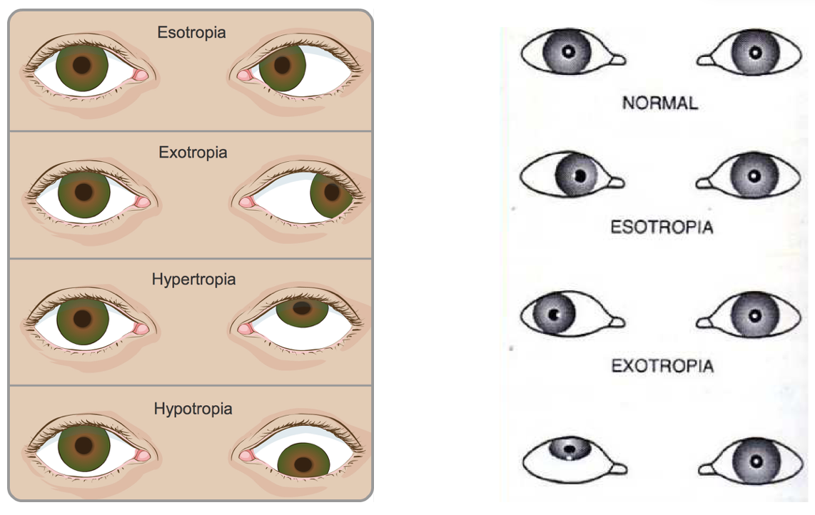 different types of strabismus