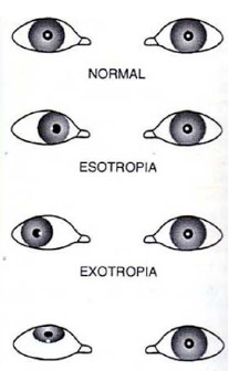 types of strabismus or squint
