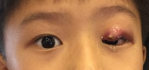 Sty in child eye