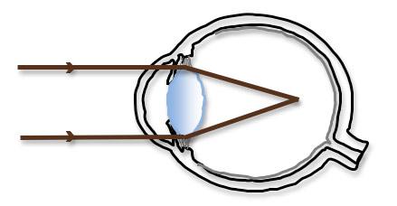 myopia and atropine