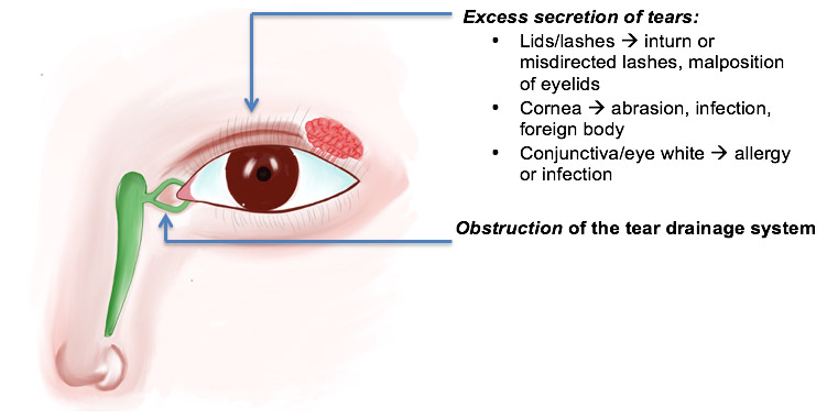 causes of excessive tearing in the eye